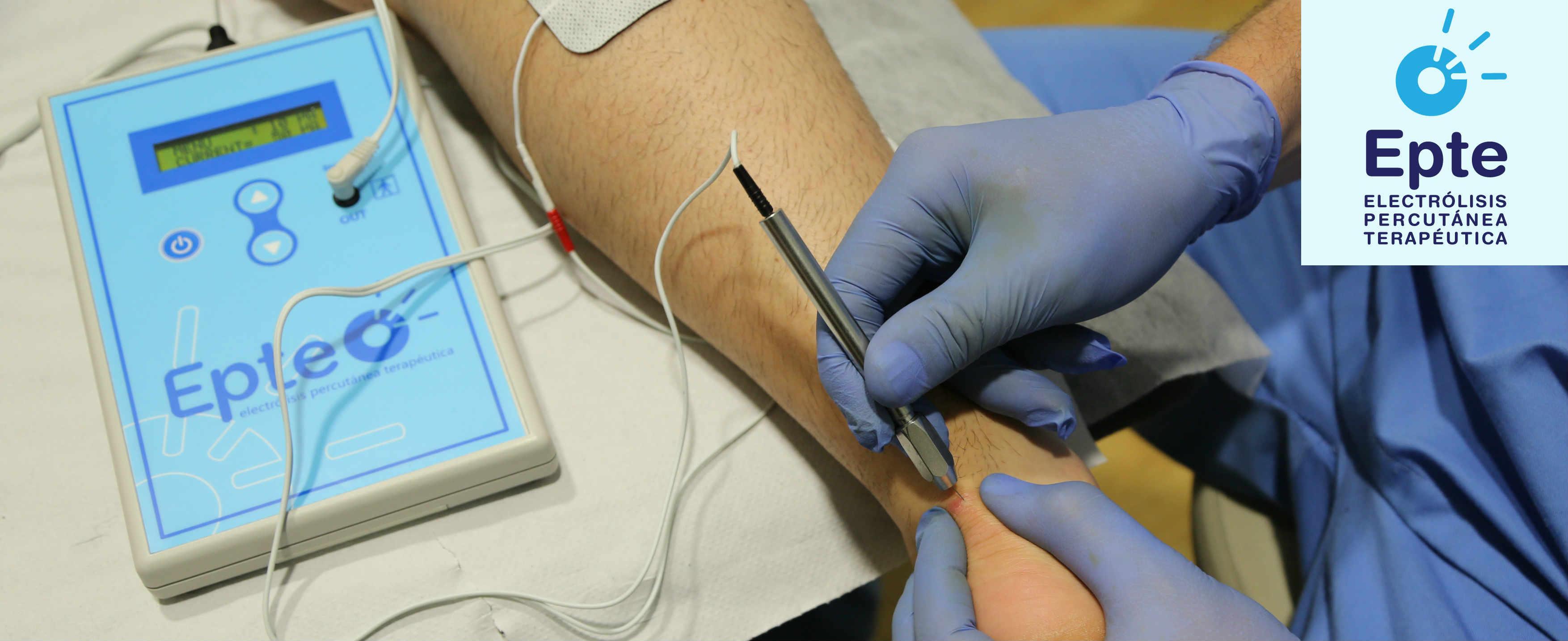 Cursos de electrólisis y aplicación EPTE para tendinopatías