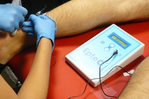 Electrolysis with EPTE on the Achilles Tendon