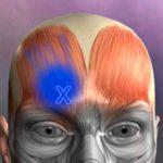 app-per-fisioteapisti-fisiatri-trigger-points