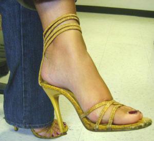 Lesiones por zapatos de tacón
