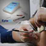 EPTE treatment Achilles tendon course