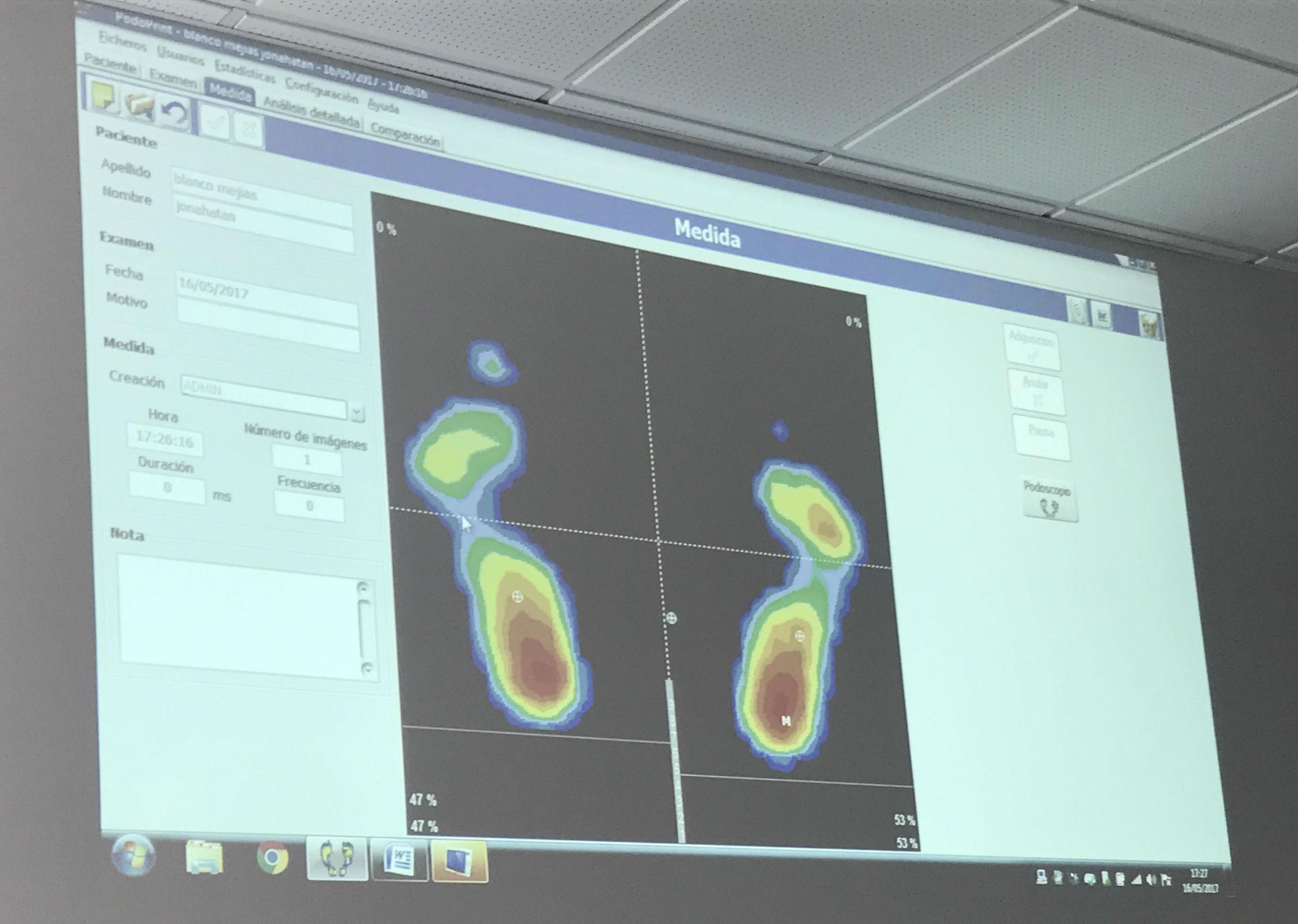Estudio de la pisada para evitar lesiones y detectar for Estudio de pisada