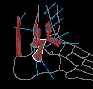 tendinopatía del tendón de Aquiles