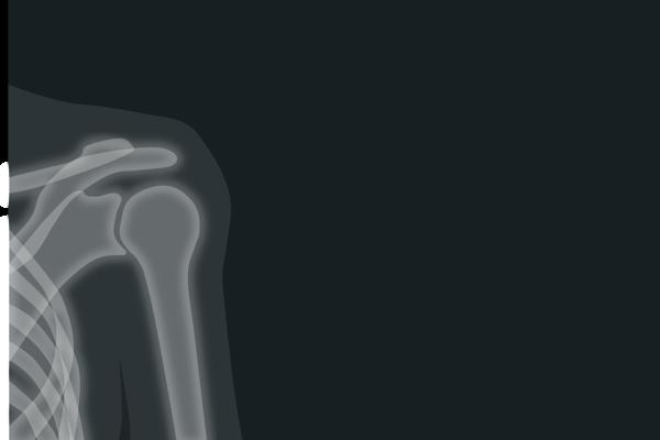 Dolor de hombro, Manejo conservador e intervencionista de la patología del hombro