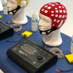 Transcraneal tDCS Transcranial Direct Current Stimulation