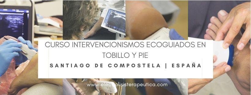 Podología Santiago de Compostela